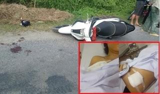 Cô gái bị cướp đâm trọng thương trước ngày đăng ký kết hôn