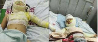 Nướng mực bằng cồn, cả gia đình bỏng nặng, bé 2 tuổi tử vong
