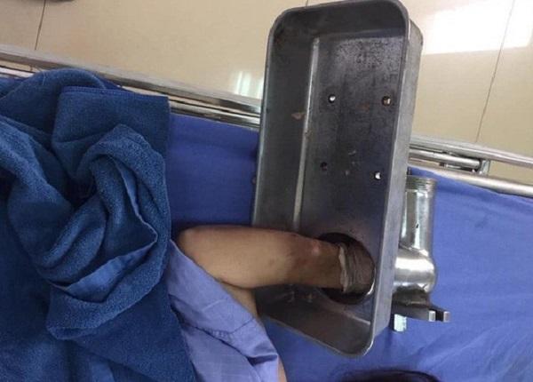 Bị máy xay nghiền nát bàn tay, bệnh nhân vác cả máy đến viện cấp cứu