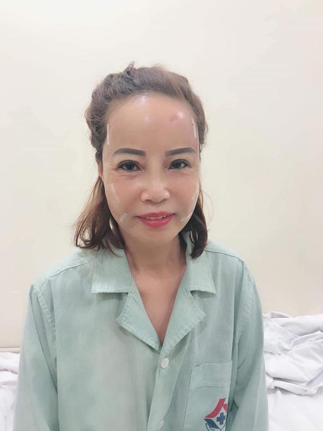 Cô dâu 62 tuổi lại lộ gương mặt già nua sau thẩm mỹ 2