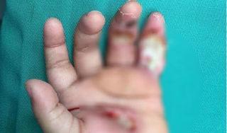 Nghệ An: Bé 1 tuổi bị điện giật bỏng nát bàn tay, hôn mê ngay tại chỗ