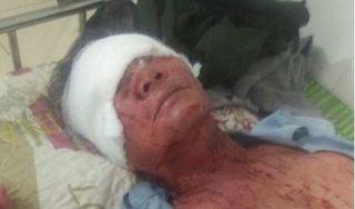 Thanh Hoá: Hai vợ chồng bị nghi bị kẻ trộm chém trọng thương trong đêm