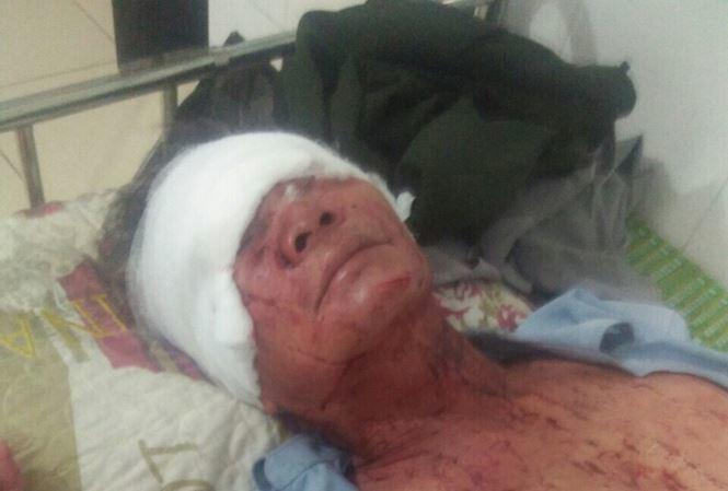 Thanh Hoá: Điều tra vụ việc 2 vợ chồng bị chém thương tích trong đêm