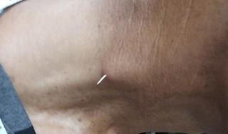 Hãi hùng xương cá đâm xuyên thực quản bệnh nhân sau 1 tháng bị hóc