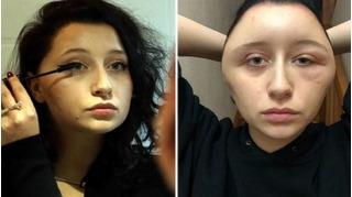Dùng thuốc nhuộm tóc mua qua mạng, đầu cô gái biến thành dị dạng