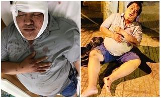 Nghệ sĩ hài Hoàng Mập bị tan nạn giao thông nghiêm trọng, phải nhập viện cấp cứu