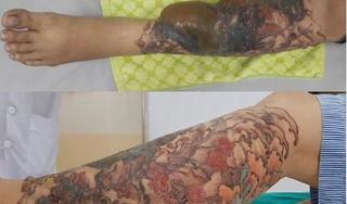 Xóa hình xăm bằng laser tại thẩm mỹ viện tư nhân, cô gái trẻ bị bỏng nặng