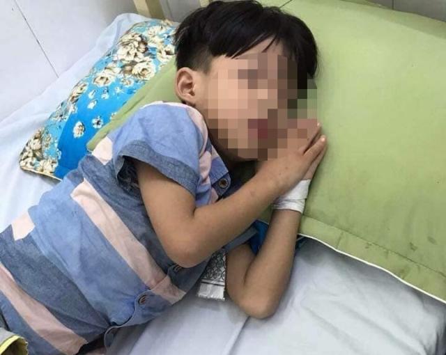 Bé trai bị chó cắn tử vong sau 1 tháng nhưng không phải do bệnh dại