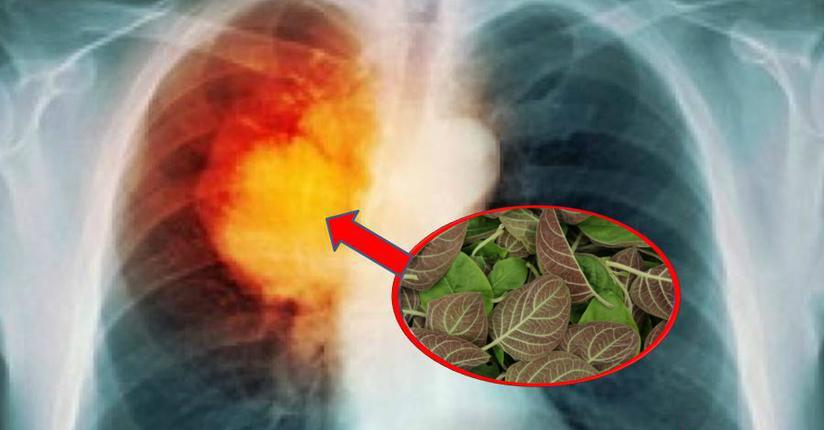 Nghìn người chia sẻ bài thuốc chữa ung thư phổi chỉ 10 ngày là khỏi, bác sĩ Đông y nói gì?