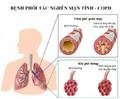 Cảnh báo khi thời tiết lạnh, căn bệnh nguy hiểm chỉ đứng sau tim mạch và ung thư đe doạ mọi người