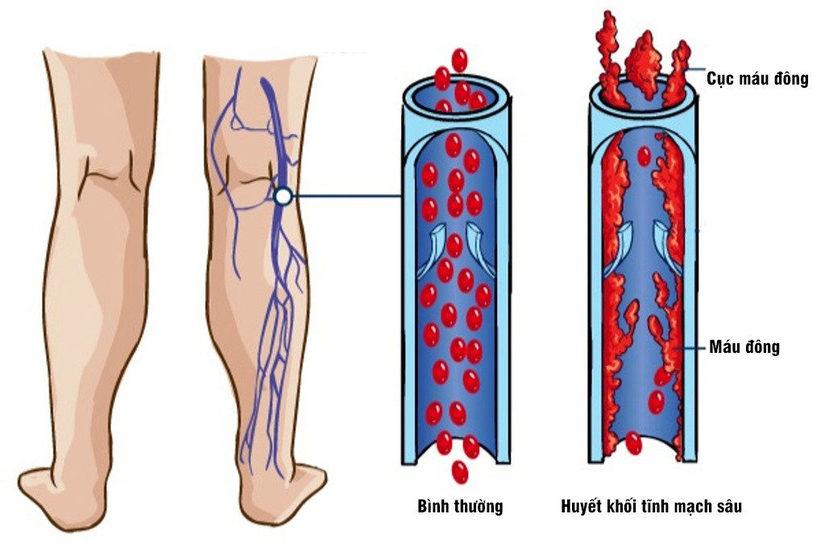 Đi thể dục đột ngột bị đau chân, không ngờ mình mắc bệnh nguy hiểm 2