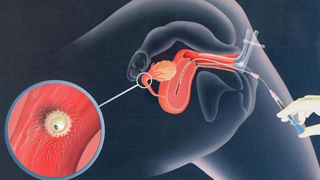 Bơm tinh trùng sau bao lâu thì biết có thai?