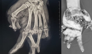 Bình gas mini phát nổ khi ăn lẩu, nam thanh niên bị dập nát bàn tay