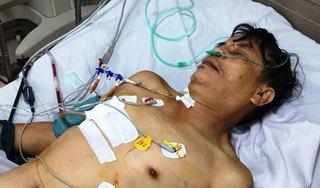 Nạn nhân bị vỡ tim sau tai nạn giao thông được cứu sống kỳ diệu