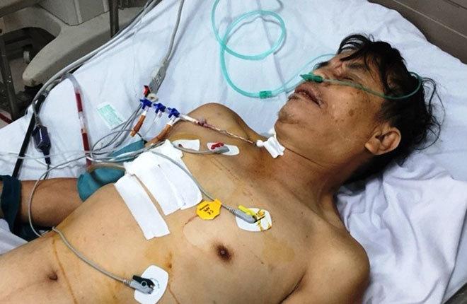 Cứu sống bệnh nhân vỡ một phần tim do TNGT