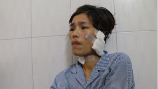 Người phụ nữ tố bị chồng cũ liên tiếp bạo hành, cắt cổ, cắt tai dã man