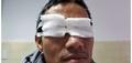Người đàn ông bị bỏng giác mạc, nguy cơ mù mắt vì đốt pháo hoa chơi Tết