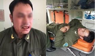 Công an lên tiếng vụ nhân viên an ninh sân bay Nội Bài bị đánh gãy 4 chiếc răng