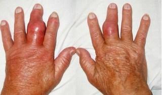 Bác sĩ đông y cảnh báo những biến chứng nguy hiểm của bệnh gút trong mùa đông