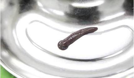 Phú Thọ: Kinh hoàng gắp con đỉa dài gần 10 cm trong cổ họng người đàn ông
