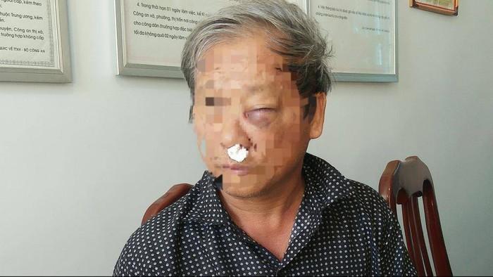 Nhà báo bị đánh sưng mặt khi cùng gia đình đi ăn sáng
