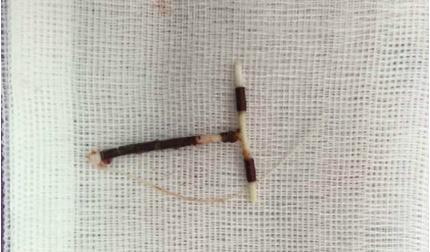 Hy hữu: Chiếc vòng tránh thai 31 năm đi lạc vào bàng quang bệnh nhân