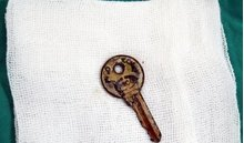 Cảnh báo: Mẹ vừa rời mắt, bé gái 6 tuổi nuốt chìa khóa vào bụng