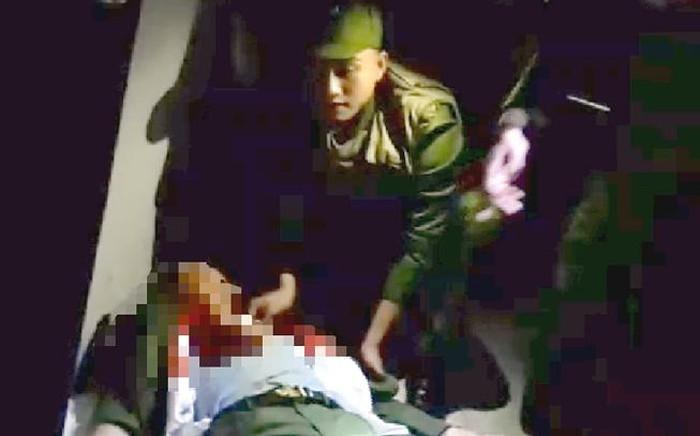 Hòa giải mâu thuẫn, Trung úy công an bị đâm trọng thương trong đêm Valentine