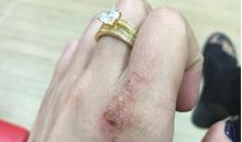 Bị chồng đánh ngược khi đến tận nhà nghỉ đánh ghen, vợ trẻ kể khổ