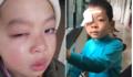 Lạng Sơn: Điều tra học sinh tiểu học bị chấn thương mắt nghi do cô giáo đánh