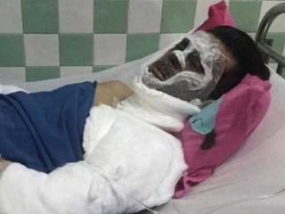 Tín hiệu tích cực cho sức khỏe của Việt kiều bị tạt a xít, cắt gân chân