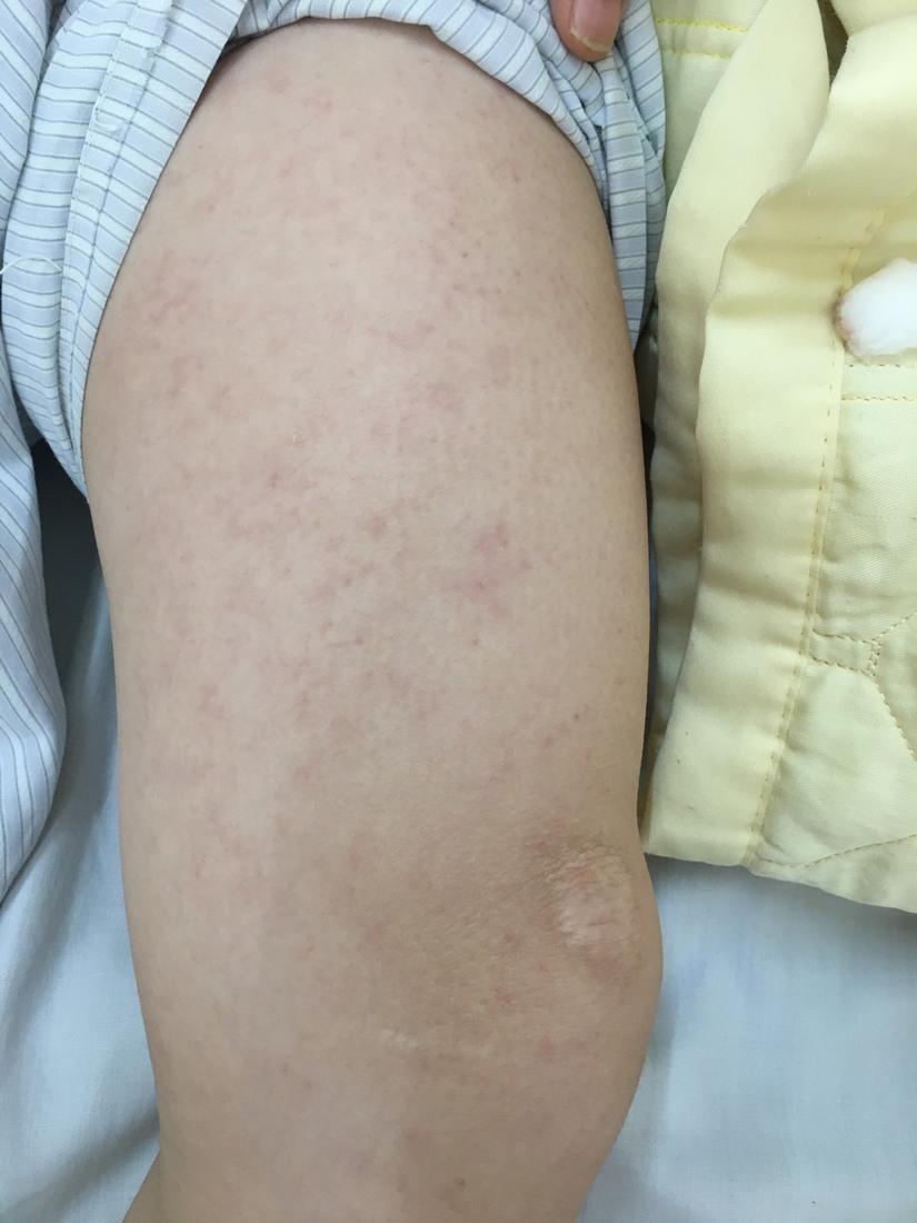 Hà Nội: Sau 3 ngày sốt cao, nữ bệnh nhân 28 tuổi bị biến chứng viêm não do sởi 2