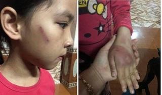 Xót xa hình ảnh bé gái 8 tuổi thâm tím khắp người do bị bố đẻ đánh đập