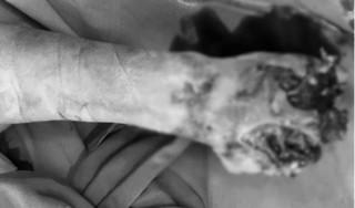 Nghệ An: Thiếu niên 13 tuổi bị cắt cụt tay do vừa sạc pin vừa dùng điện thoại