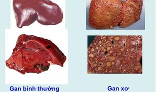 Râu ngô, đậu đỏ, bí đao trị xơ gan cổ trướng hiệu quả bất ngờ