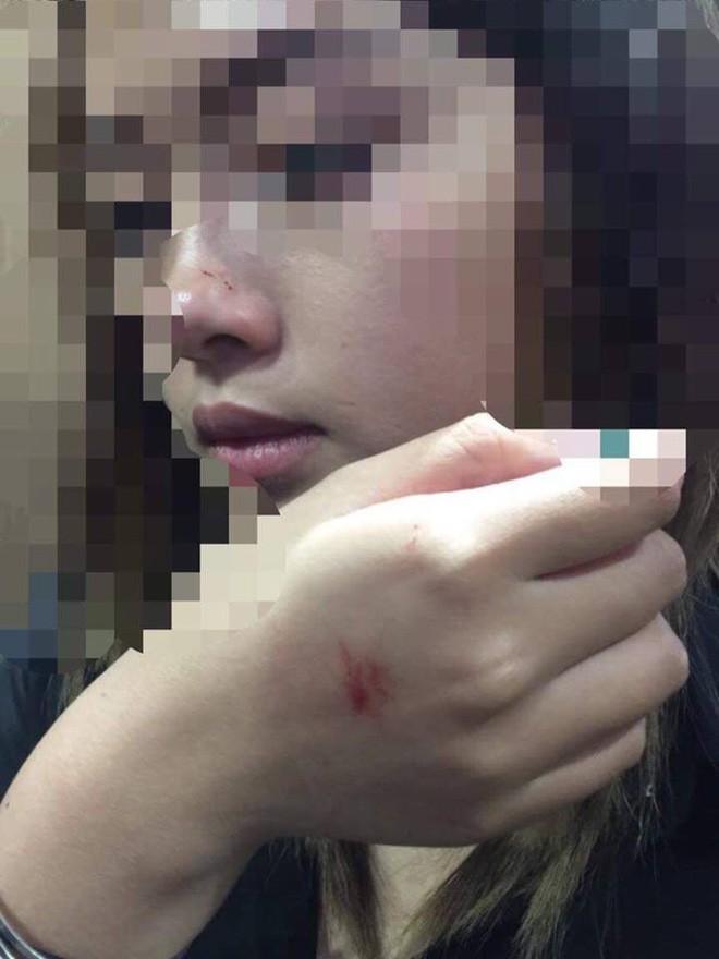 Nữ sinh bị sàm sỡ trong thang máy: 'Tôi muốn hắn phải xin lỗi công khai'