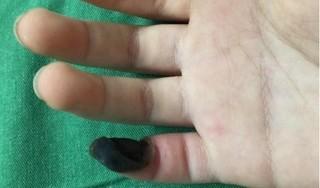 Bé 6 tuổi hoại tử ngón tay vì chữa mụn cóc bằng thuốc mua trên mạng