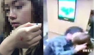 Phạt người cưỡng hôn nữ sinh 200 nghìn đồng: Bôi bác, thà không phạt còn hơn!