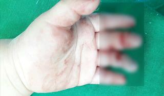 Nghệ An: Bé 16 tháng tuổi bị máy xay thịt nghiền nát bàn tay