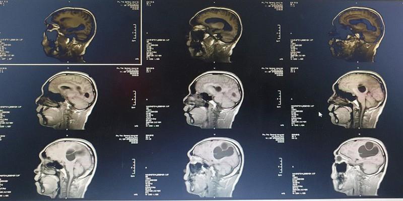 Phát hiện ổ sán khổng lồ trong não một quý ông vì món ăn rất được ưa chuộng