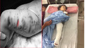 Bé gái 2 tuổi bị chó Pibull tấn công dã man, người dân phải dùng xà beng giải cứu