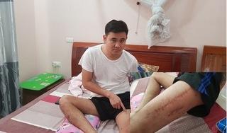 Cảnh sát 113 Thanh Hóa bắn thanh niên nát xương đùi vì nghi ngáo đá