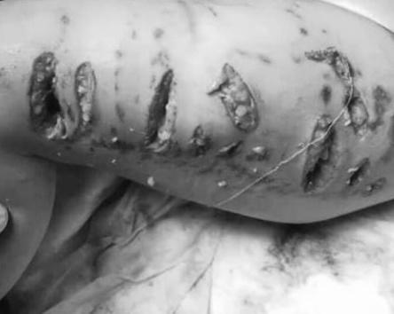 Chó Pitbull giật đứt xích tấn công kinh hoàng bé gái 3 tuổi