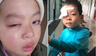Kết quả giám định mắt cháu bé bị nghi do cô giáo đánh ở Lạng Sơn