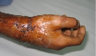 Hơn 6 giờ phẫu thuật cứu người đàn ông bị chém đứt rời cổ tay