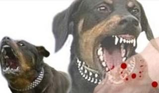 Những việc cần làm ngay sau khi bị chó cắn để tránh nguy hiểm