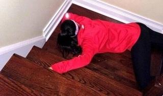 Ngã từ cầu thang xuống nền gạch, bé gái chấn thương sọ não, hôn mê