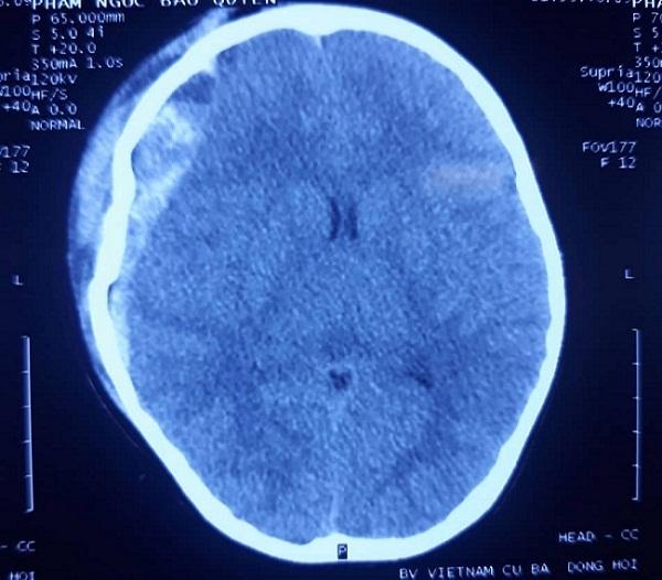 Bé gái chấn thương sọ não, hôn mê sau cú ngã cầu thang