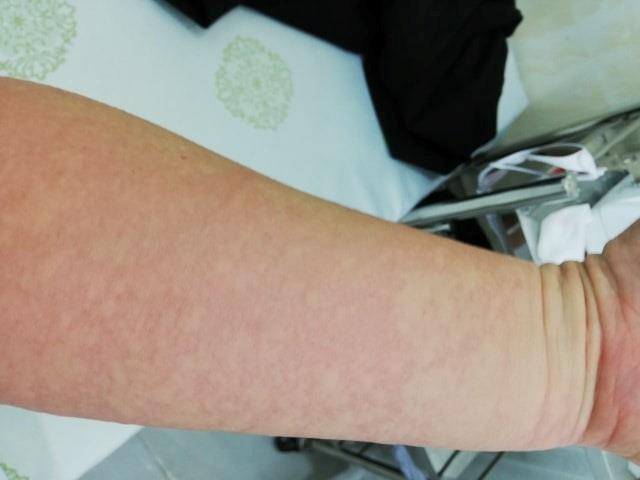 Nữ bệnh nhân Hải Phòng phải nhập viện cấp cứu khi phun môi tại thẩm mỹ viện 2