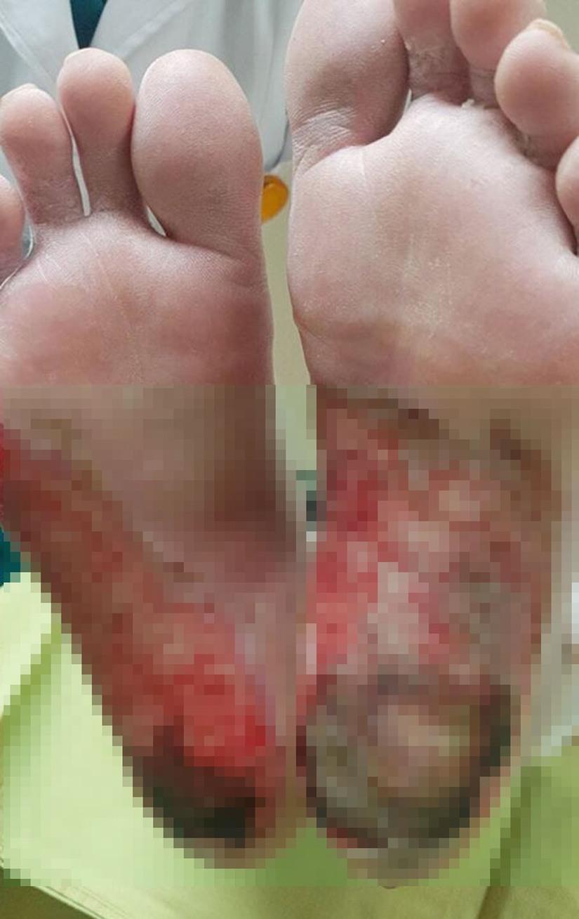 Dùng muối đá Himalaya, bệnh nhân bị hoại tử chân và những nguy hiểm khủng khiếp